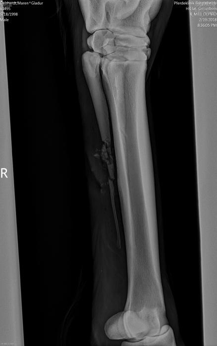 Röntgenbild vom Griffelbeinbruch